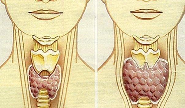 ЩИТОВИДКА В ПОРЯДКЕ Смешайте по одному стакану молотой гречневой крупы, пропущенных через мясорубку грецких орехов и меда в эмалированной (абсолютно чистой) посуде и переложите в стеклянную