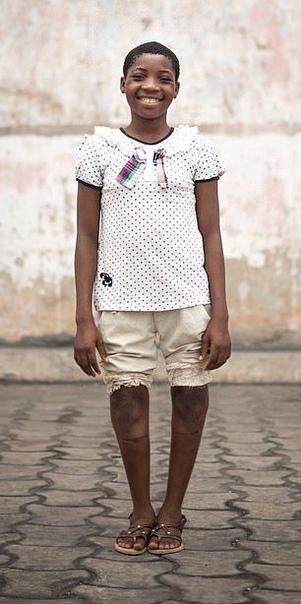Хирурги преобразили девочку с жутко искривленными ногами кавалериста К 14 годам ноги Валерии из Бенина (Западная Африка) искривились настолько, что она была вынуждена бросить школу. Валерии было
