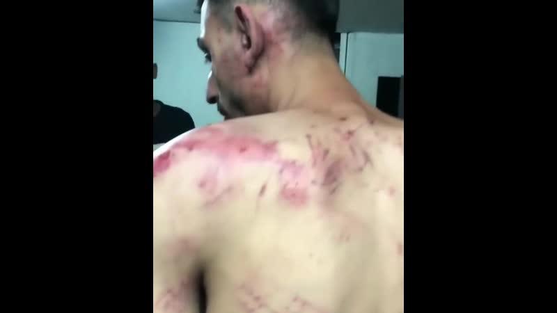 Voici ce que la police israélienne a fait subir à un membre de la famille Hawamdeh dans la ville occupée de Lod